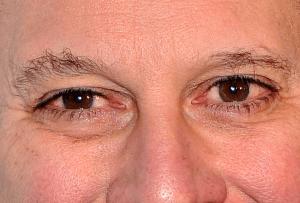 Eric Schneiderman's eyes. (Cropped. Photo base: Getty/Stephen Lovekin)