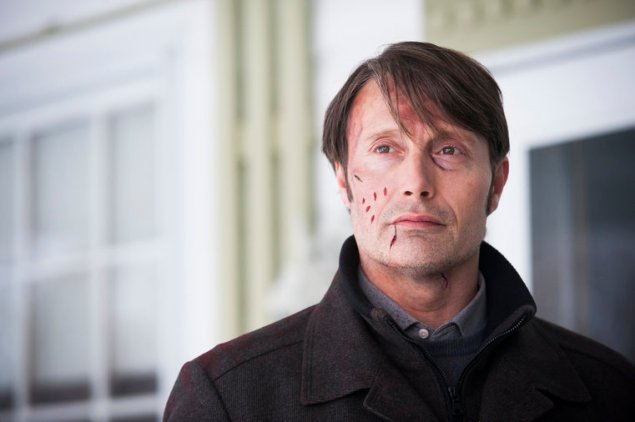 """HANNIBAL -- """"Digestivo"""" Episode 307 -- Pictured: Mads Mikkelsen as Hannibal Lecter -- (Photo by: Brooke Palmer/NBC)"""