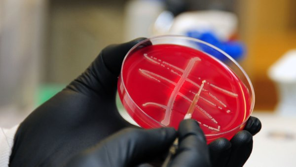"""The discovery of an antibiotic resistant """"superbug"""" has raised alarm bells in the medical community,"""