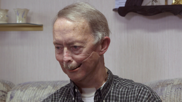 Shirley Anderson fit with his facial prosthesis