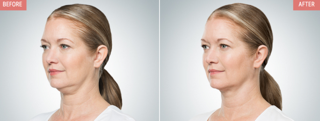 """KYBELLA® is a prescription medicine used in adults to improve the appearance and profile of moderate to severe fat below the chin (submental fat), also called """"double chin."""" It is not known if KYBELLA® is safe and effective for use outside of the submental area or in children less than 18 years of age."""