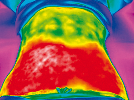 The treated body part is located in the high-frequency electric field. The temperature increases to apoptic levels in the fat tissue while the surrounding tissue remains protected from apoptic temperature levels.