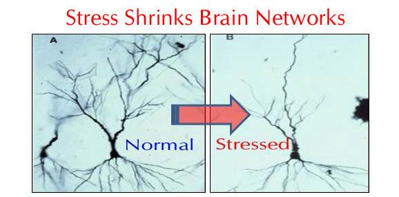 Stress shrinks brain networks