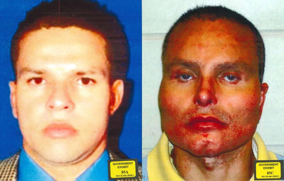 Colombian drug lord Juan Carlos Ramírez Abadía, aka, Chupeta (lollipop), before and after facial reconstruction surgery meant to hide his identity.