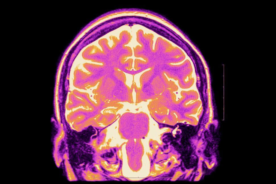 Mri T2, Frontal Cut Away View. Partial Drug Resistant Epilepsy. Right Hippocampal Sclerosis.